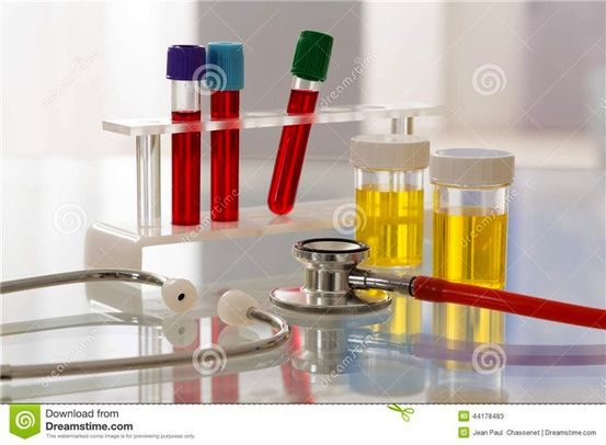 Proteini u urinu (mokraći) • Proteinurija
