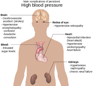 hipertenzija 160-100)