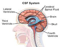 Idiopatska intrakranijalna hipertenzija