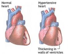 hipertenzija simptomi srca)