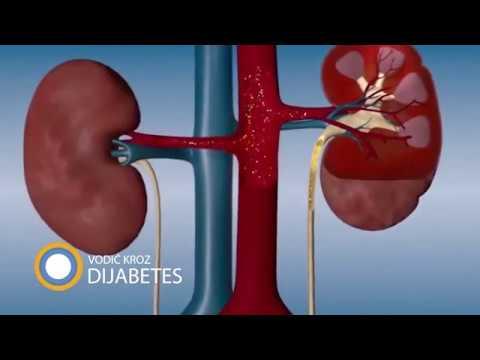 hipertenzija i liječenje hidronefroze)