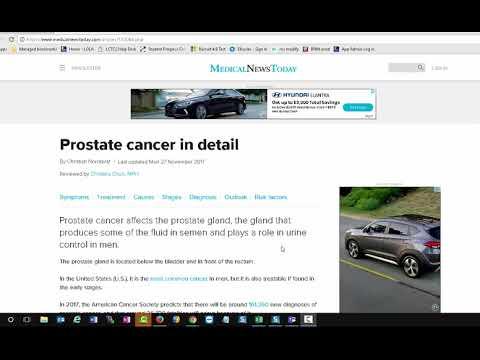 Benigna hiperplazija prostate (BHP) · Poliklinika Intertim