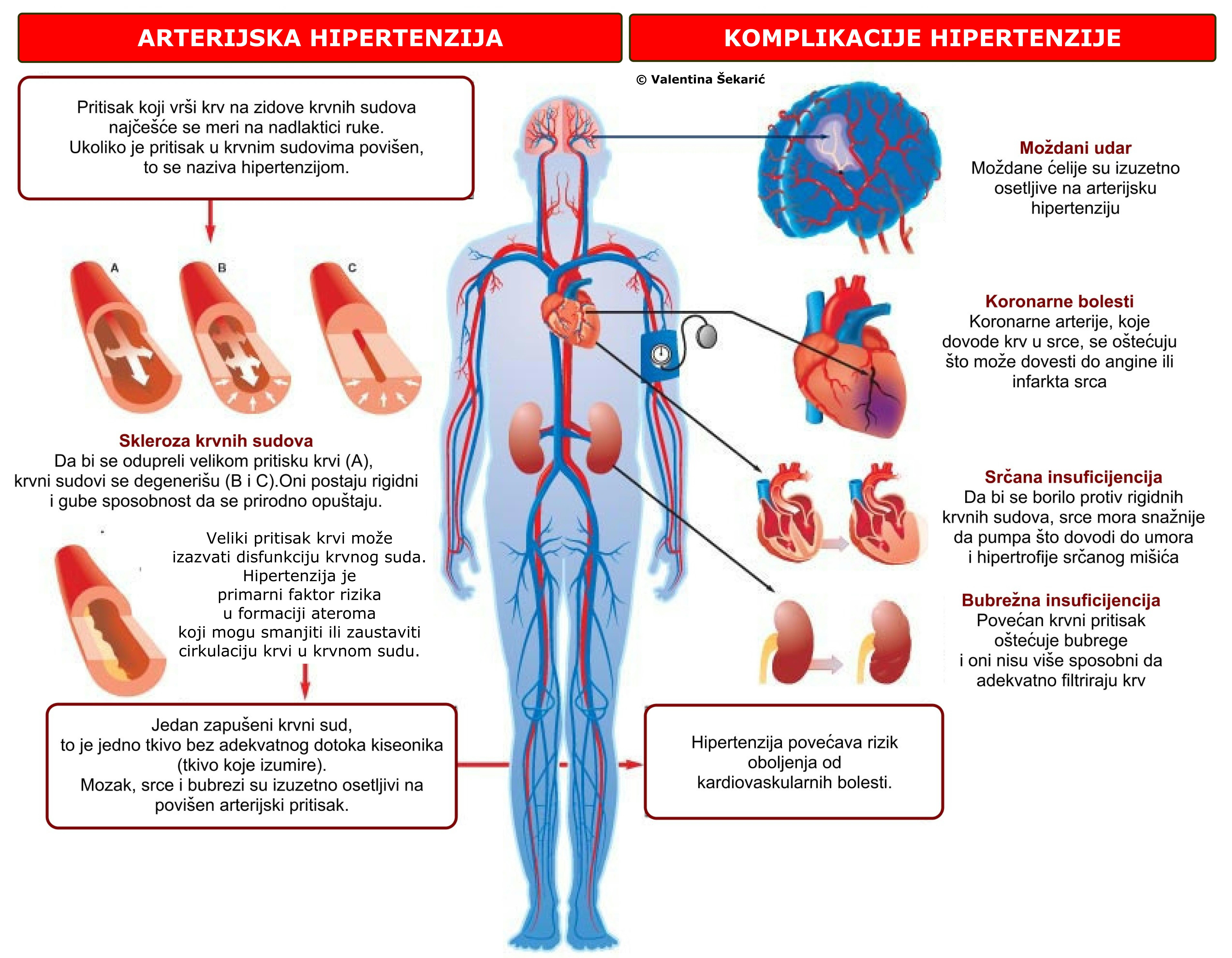 mogu li dobiti nesposobnost za hipertenziju liječenje hipertenzije 3 stupnjeva lijekova