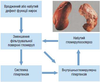 lijekovi za hipertenziju stupnja vitamini za hipertenziju lav klijetke