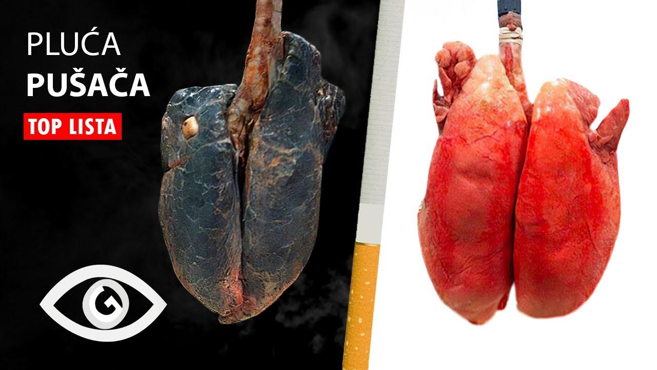 averyanov i hipertenzija