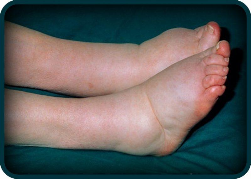 otekline u nogama hipertenzije
