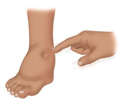 oticanje nogu s hipertenzijom