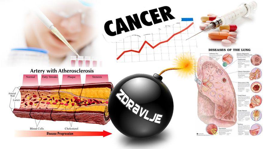 rak hipertenzija
