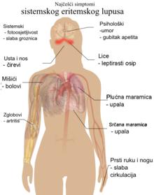 hipertenzije i endokarditis