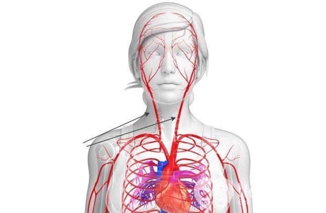 refleksogenih hipertenzija)