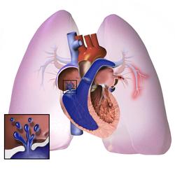 hipertenzija, plućna posljedice cirkulacija