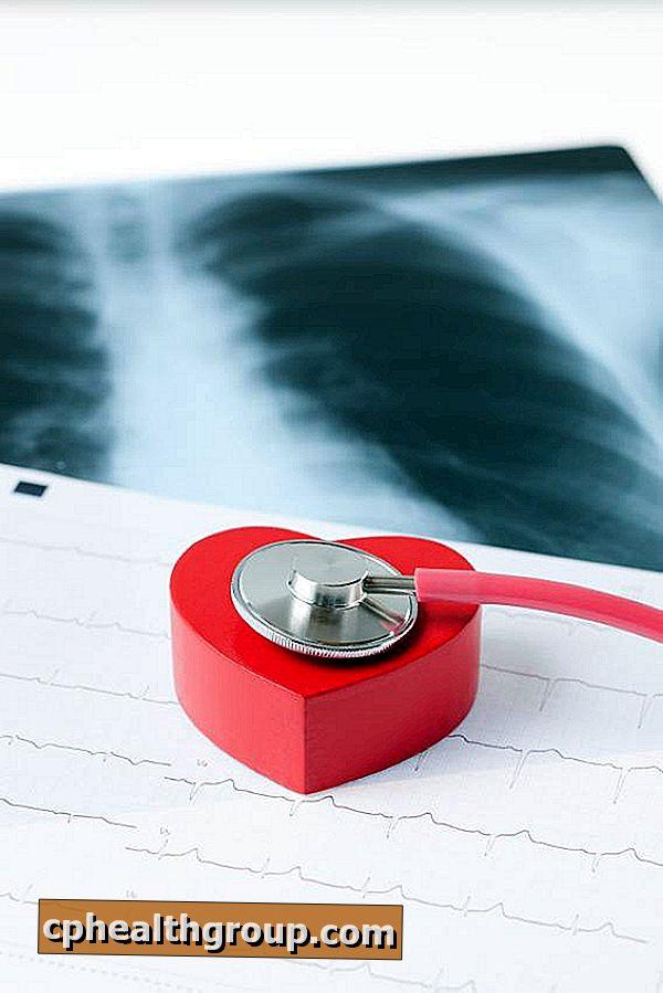 da li hipertenzija narukvice magnetski hipertenzija