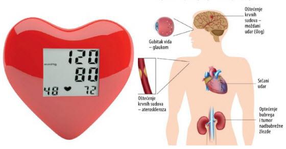 hipertenzija leži nos