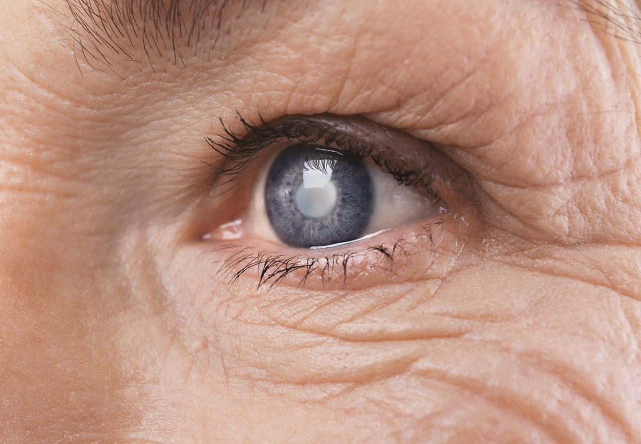 hipertenzija očiju manjoj mjeri hipertenzija čišćenje posude