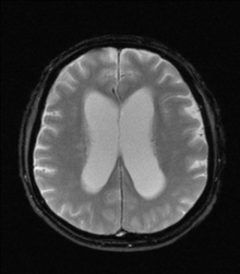hidrocefalus hipertenzije)