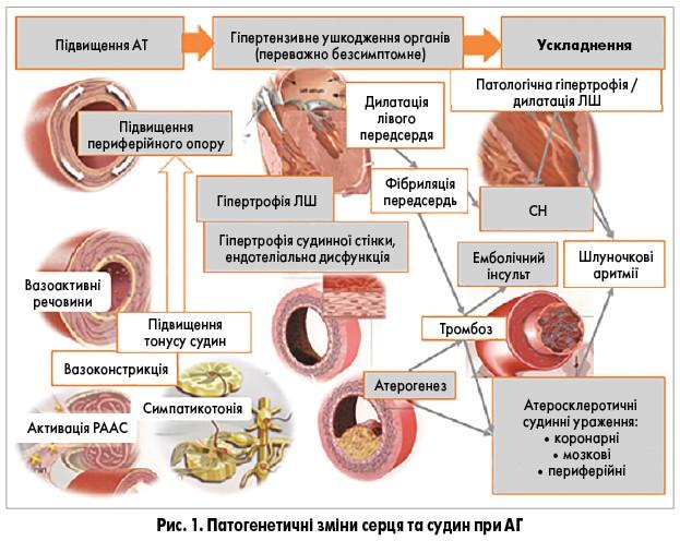 diuretik u hipertenzija stopa)