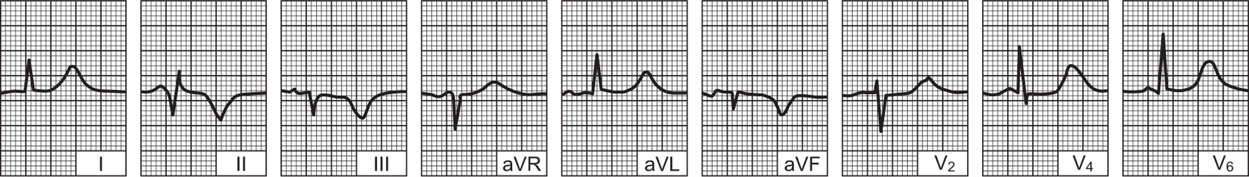Aritmija - poremećaj ritma srca