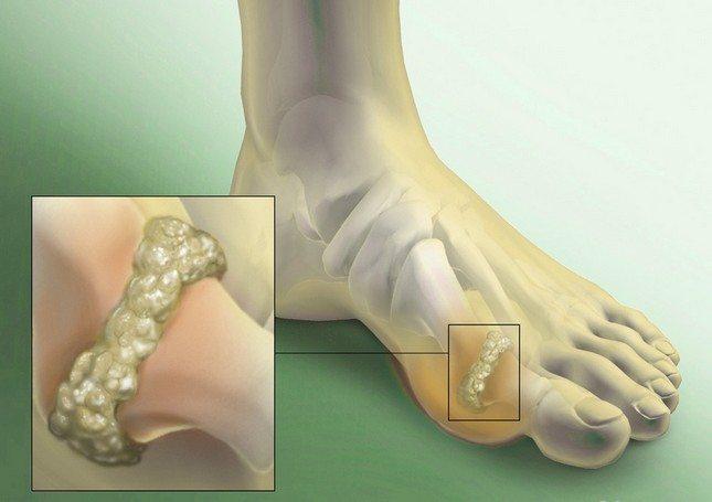 Tablete za vrtoglavicu s cervikalnom osteohondrozom