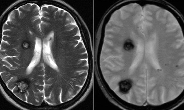 MSD priručnik dijagnostike i terapije: Tumori mozga i kralježnične moždine