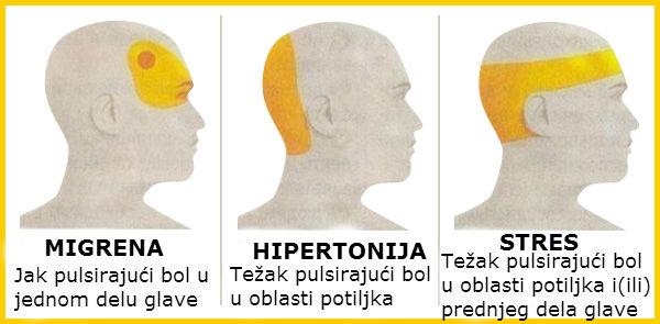 Kada hipertenzija ima glavobolju