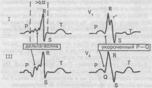 hipertenzija oblik hyperadrenergic)