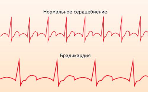 Intrakranijalna hipertenzija u adolescenata - Uvreda -