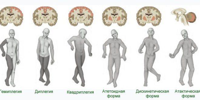 hipertenzija s cerebralnom paralizom)
