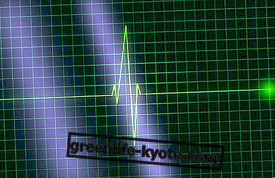 hipertenzija i srčana aritmija)