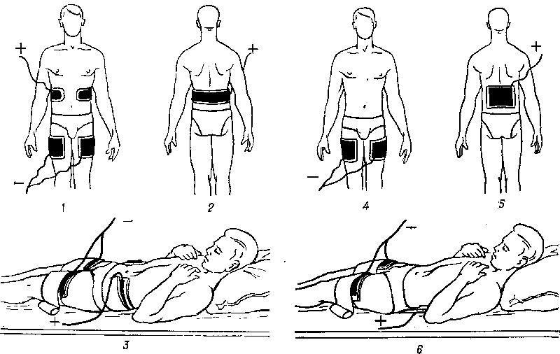 hipertenzija galvanizacija vrat području