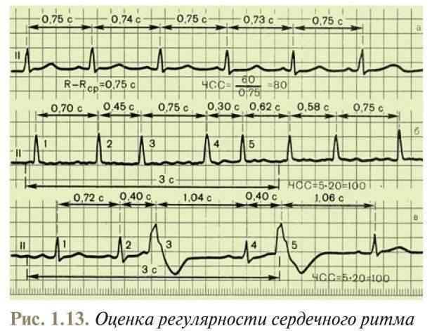 kako izgubiti težinu u angine pektoris i hipertenzija)