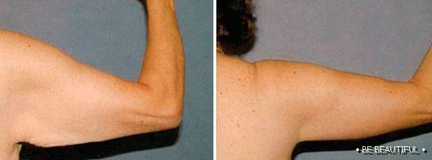 hipertenzija, ruke i ramena