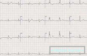 bradikardija liječenje hipertenzije