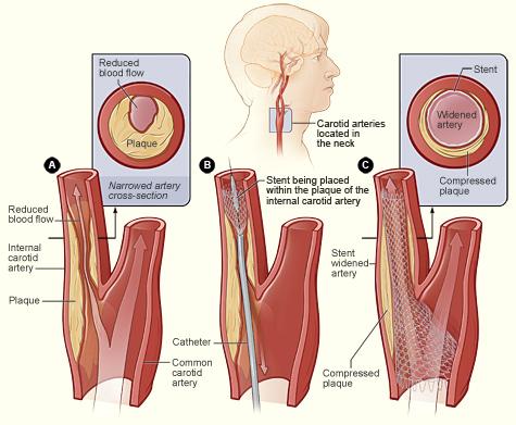 ateroskleroze karotidnih arterija na vratu)