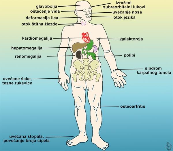 hipofiza i hipertenzije)