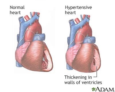 hrt s hipertenzijom)