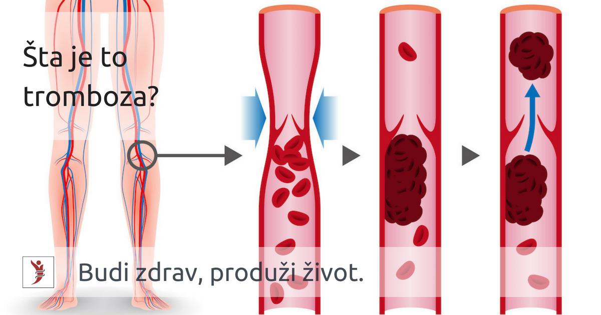 Je li crijevna tromboza opasna i zašto se može pojaviti?