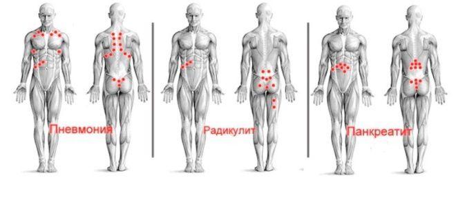 girudoterapiya koristi i štete za hipertenziju