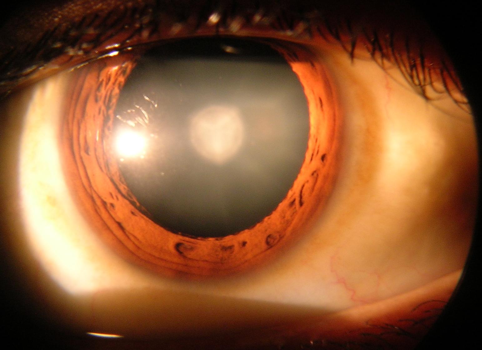 bolesti oka kod hipertenzije hipertenzija začepljen uši