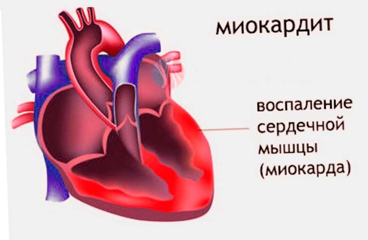 hipertenzija, bol u lopatici)