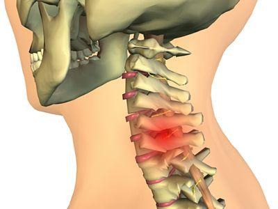 Vježba za cervikalnu osteohondrozu i nestabilnost vratne kralježnice