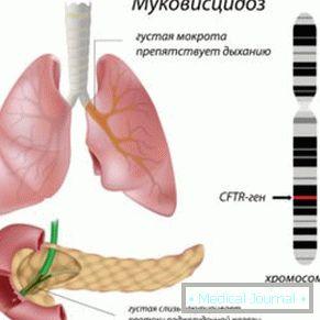 cistična hipertenzija)