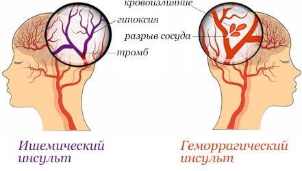 grandaxinum i hipertenzija