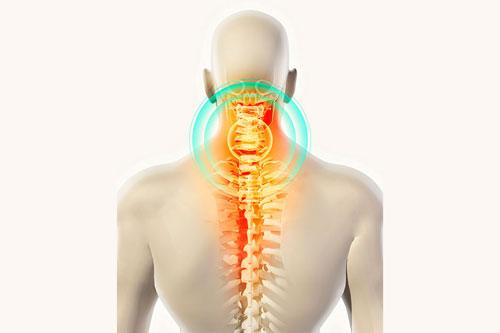 glavobolje u zatiljka hipertenzije