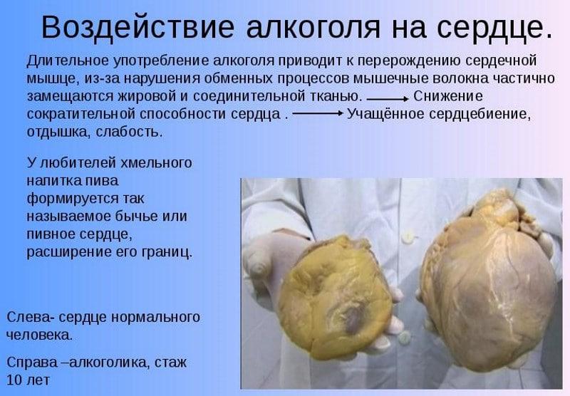 cijeđenje bol u srcu)