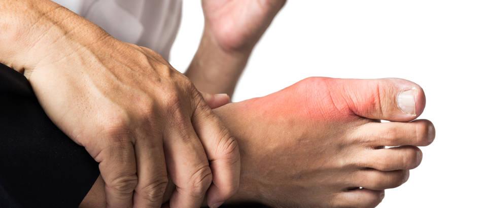 liječenje gihta i hipertenzije