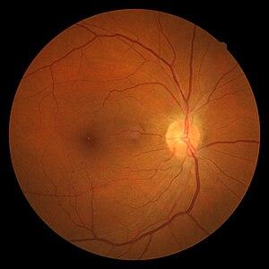 retina hipertenzije)