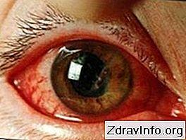 praska žila u oku hipertenzije