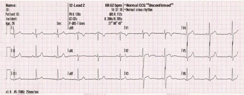 ekg bolesnika s hipertenzijom