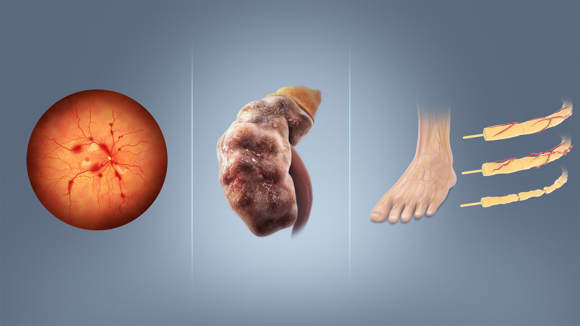 invalidnosti hipertenzija tip 2 diabetes mellitus