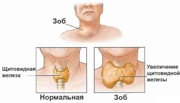 difuzni hipertenzija)